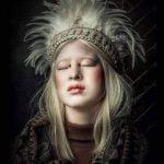 Inspiring Teenager The Albinis Xueli